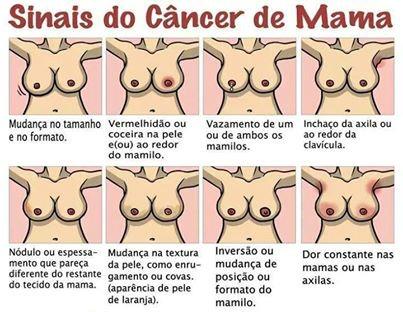 sinais de cancer de mama